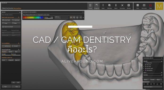 CAD / CAM Dentistry คืออะไร?